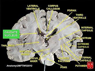 Caudate nucleus - Image: Slide 13kk