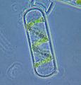 Spirogyra cell.jpg