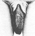 Hypertrophie der inneren Schamlippen bei einer Frau der Khoisan, in gespreiztem Zustand (links) und aufrecht stehend (rechts)