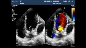 File:Survival-after-Left-Ventricular-Free-Wall-Rupture-in-an-Elderly-Woman-with-Acute-Myocardial-728602.f1.ogv