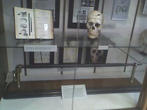 The skull of Phineas Gage, along with the tamp...