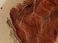 Trichinella spiralis (YPM IZ 095188).jpeg