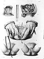 Various operations on the rectum Wellcome L0000394.jpg