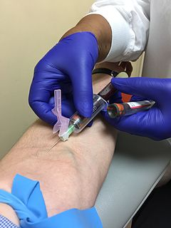 Venipuncture process of obtaining intravenous access