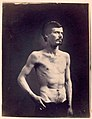 (James Brownlee - Wounds in chest & abdomen.) (3110015583).jpg