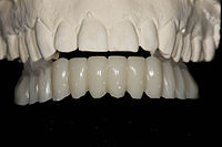 06 arch of composite teeth.jpg