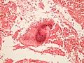 Actinomycosis GRAM'S.JPG