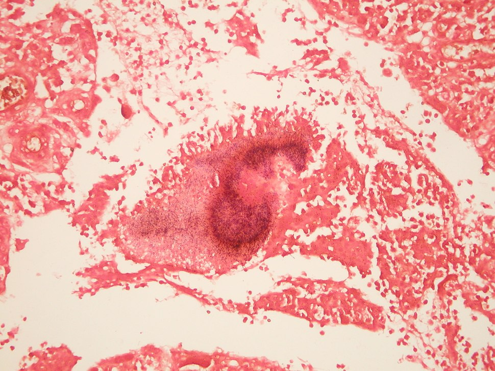 Actinomycosis GRAM'S