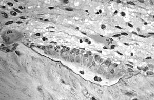 Bone tissue - Osteoblasts. actively synthesizing osteoid with two osteocytes.