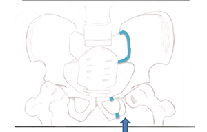 This fracture is best viewed anteriorly, while the other fractures are viewed superiorly. The arrow indicates where the force is coming from, and the colored lines indicate where the break occurs.