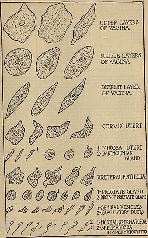 Medical dictionary - An illustration from Appleton's Medical Dictionary; edited by S. E. Jelliffe (1916)