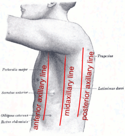 Axillary lines on chest pain location diagram male