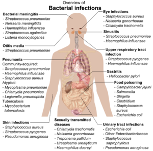 chart showing bacterial infections upon various parts of human body