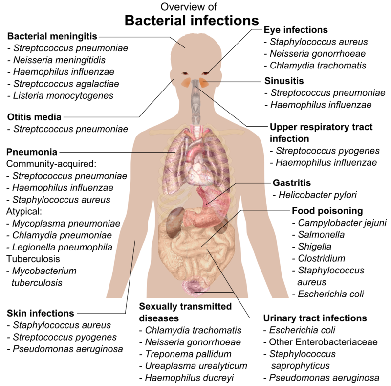 Overview of bacterial infections