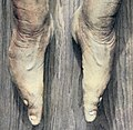 Bound feet detail, from- Die verkruppeltenFusse einerChinesin (cropped).jpg