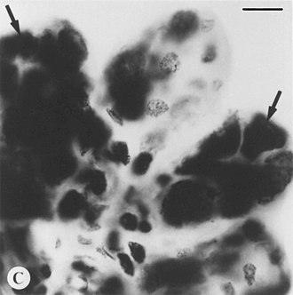 Feulgen stain - Black and white microphotograph of Feulgen stained, intact tick salivary glands infected by deer tick virus. Hypotrophied salivary acinus filled with amorphous masses of pinkstaining (=Feulgen positive) material (arrows). Scale bar = 10 µm.