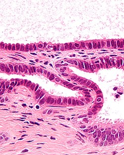 Endosalpingiosis - cropped 2 - very high mag.jpg