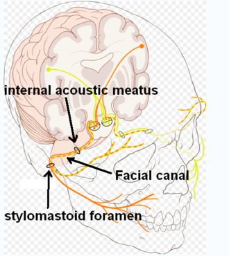 Facial canal - Route of facial nerve, with facial canal labeled
