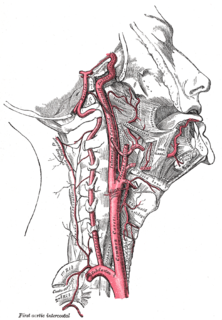 Carotid artery dissection Human disease