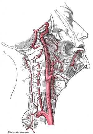 Carotid endarterectomy - The carotid artery is the large vertical artery in red. The blood supply to the common carotid artery starts at the arch of the aorta (left) or the subclavian artery (right). The common carotid artery divides into the internal carotid artery and the external carotid artery. Plaque often builds up at that division, and a carotid endarterectomy cuts open the artery and removes the plaque.