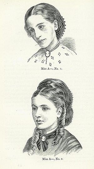 History of anorexia nervosa - Miss A, pictured in 1866 aged 17 (No. 1) and in 1870 aged 21 (No. 2). From the published medical papers of Sir William Gull