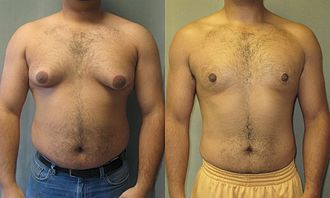 Anabolic steroid - 22-year-old man with gynecomastia not due to AAS use. Before and after gynecomastia surgery.