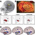 Human Electrocorticographic (ECoG) Signals.jpg