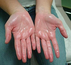 Hyperhidrosis Treatment.jpg