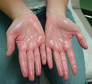 Hyperhidrosis condition characterized by abnormally increased sweating