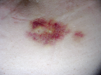 Interferon beta-1a - Injectable medications can produce irritation or bruises at injection site. The bruise depicted was produced by a subcutaneous injection.