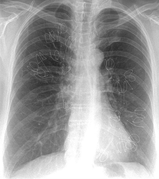 Lung Volume Reduction Coils - chest - xray
