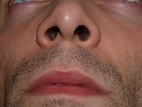 Nostrils by David Shankbone