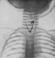 PSM V88 D082 X ray of a pin stuck in the throat.png