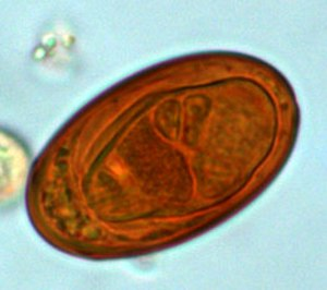 Liver fluke - Egg of Dicrocoelium sp.