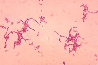 Peptostreptococcus - Peptostreptococcus spp. growing in characteristic chain formations.
