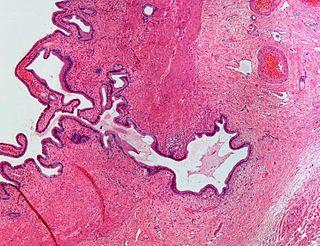 Adenomyomatosis
