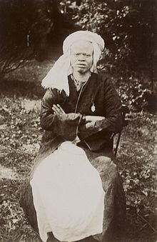 http://upload.wikimedia.org/wikipedia/commons/thumb/9/9c/S%C3%A9n%C3%A9galais_Albinos.jpg/220px-S%C3%A9n%C3%A9galais_Albinos.jpg