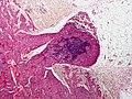 Skin Tumors-P6231211.jpg