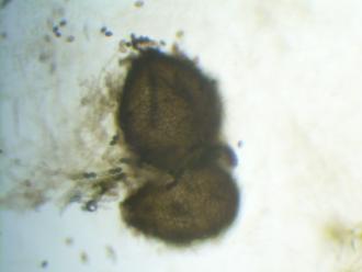 Sordariomycetes - Sordaria fimicola perithecium magnified 40x