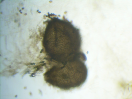 Sordaria fimicola perithecium (heterozygote) 40X.png