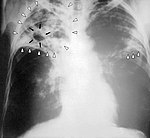 Chest X-ray of a person with advanced tuberculosis: Infection in both lungs is marked by white arrow-heads, and the formation of a cavity is marked by black arrows.