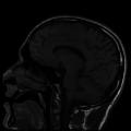 Webysther 635864498758569254 - Imagem por ressonância magnética.png