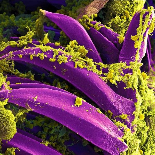 File:Yersinia pestis Bacteria.jpg
