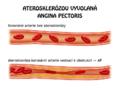 AP Ateroskleróza.png
