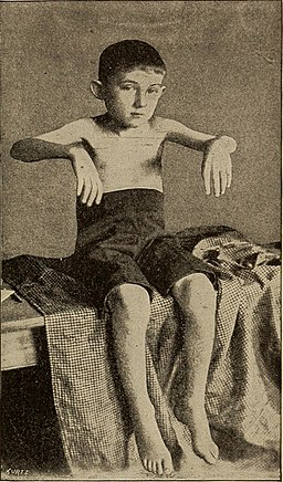 A treatise on the nervous diseases of children, for physicians and students (1905) (14598103467)