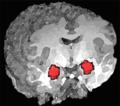 Amygdala position.png
