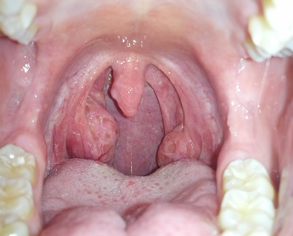 infektion i halsen klump i halsen