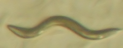 A wild-type adult Caenorhabditis elegans nematode worm, grown under RNAi suppression of a nuclear hormone receptor involved in desaturase regulation. These worms have abnormal fatty acid metabolism but are viable and fertile.