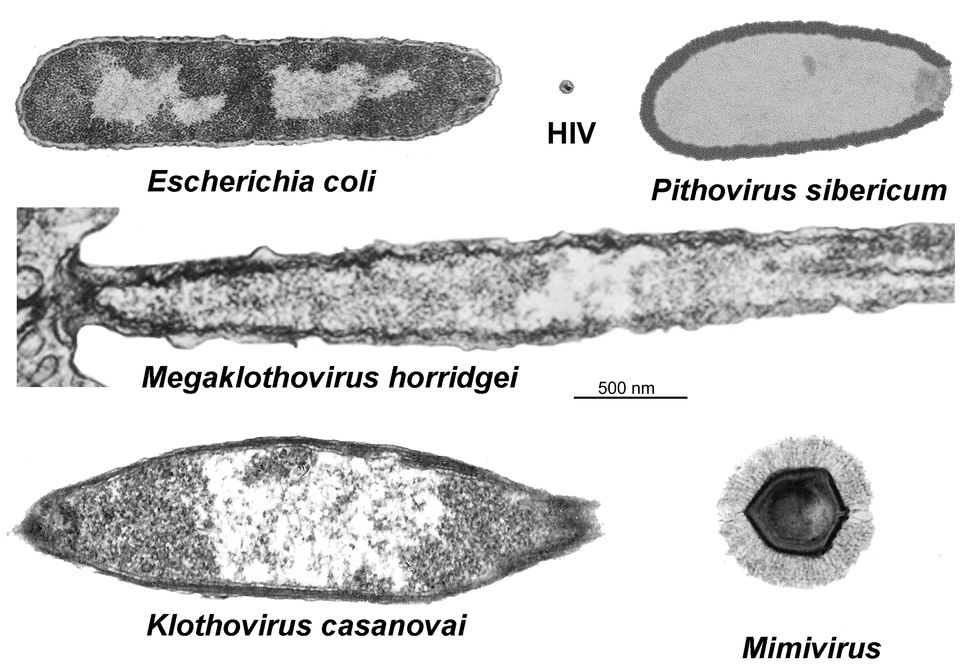 Comparison of the size of giant viruses to a common virus (HIV) and bacteria (E. coli)