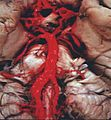 Human base of brain blood supply.JPG